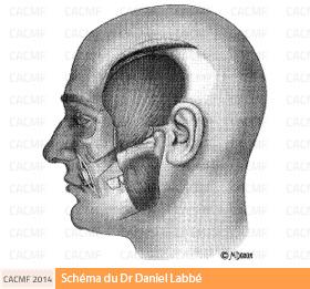 opération tumeur parotide